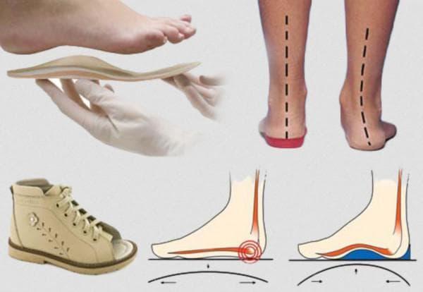 Зачем нужна детям ортопедическая обувь при вальгусной деформации